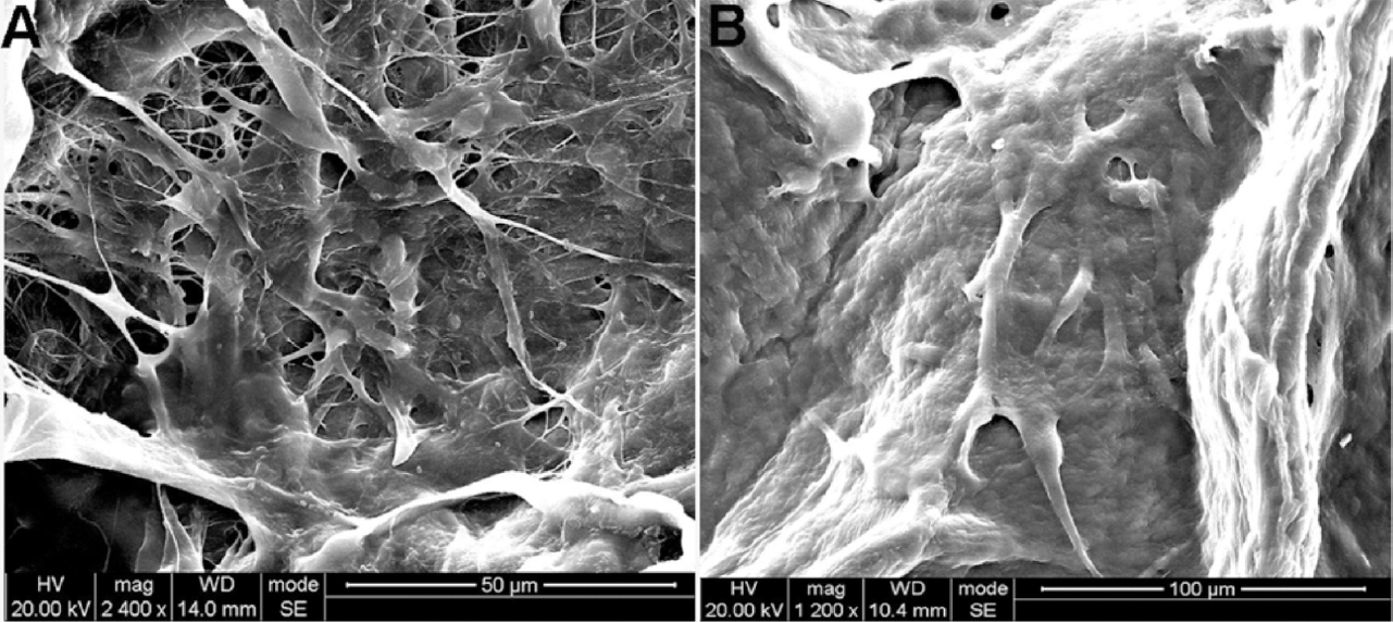 Figure 1: Images of BAM seeded with MSCs from human umbilicus taken by Scanning Electron Microscope (SEM). <b>A</b> At 5 days the cells migrate and proliferate inside BAM (magnification ×2400). <b>B</b> At 10 days MSCs from human umbilicus fill in the surface of BAM (magnification ×1200).