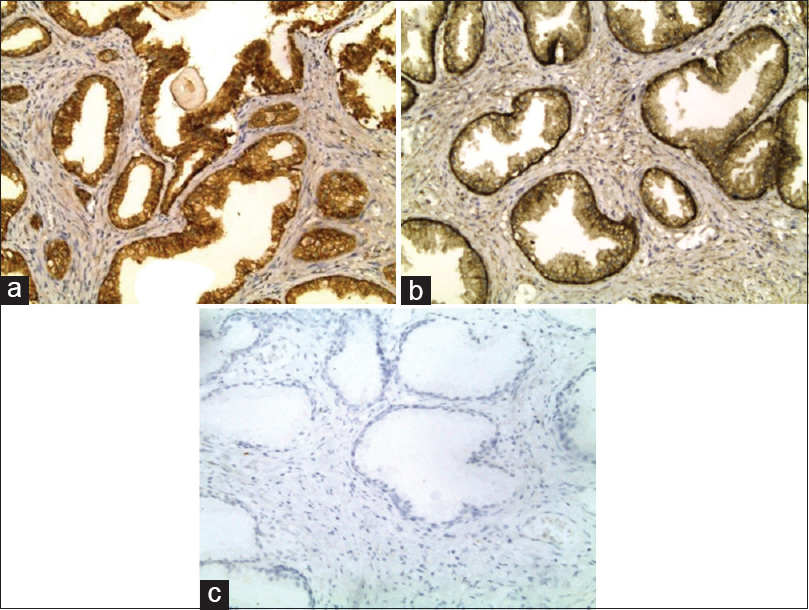 Figure 5: E cadherin membranous expression in nodular prostatic hyperplasia with high expression in (a), low expression in (b) and absent expression in (c) (immunohistochemical staining ×200 for [a and b], ×100 for [c])