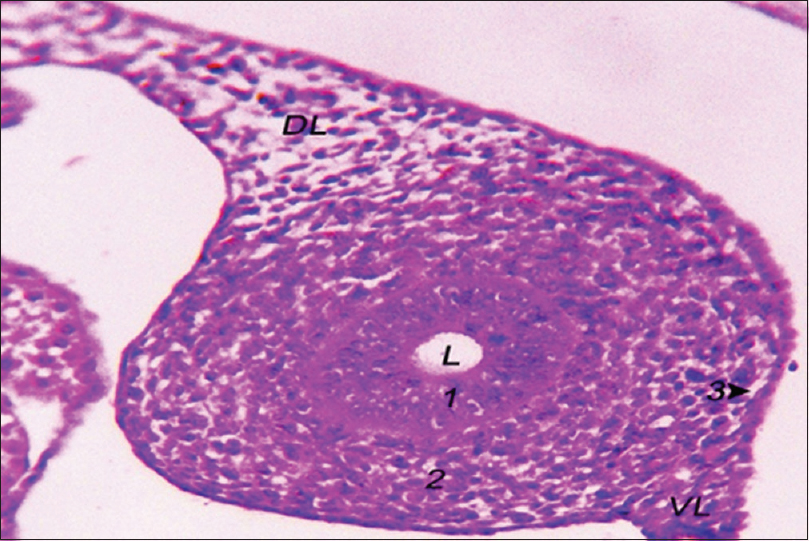 Figure 5: The structure of the left Mullerian duct of 8-day-old embryo. Mullerian duct epithelium (1), Mullerian duct mesenchyme (2), Mullerian coelomic epithelium (3), DL: Dorsal ligament of oviduct, VL: Ventral ligament of oviduct, L: Lumen (H and E, ×40)
