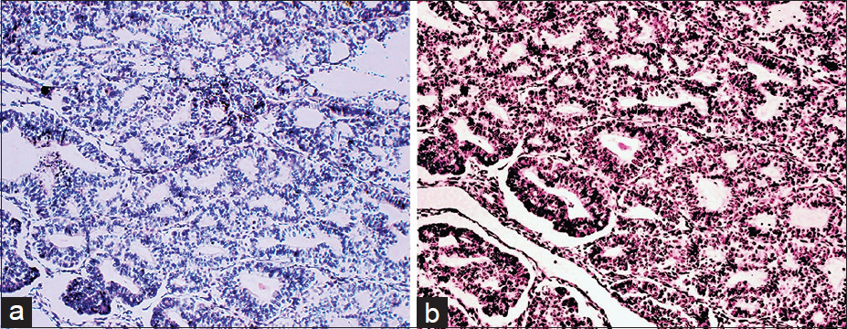 Figure 4: A case of endometrial carcinoma. (a) Weak focal staining for phosphate and tensin homolog (DAB, 100). (b) Strong staining for p27 (DAB,100)