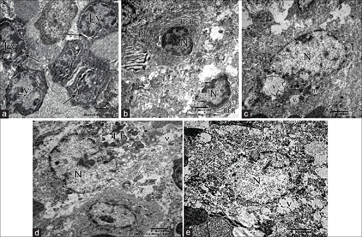 Figure 8: Electron micrographs of Group II. (a) Lymphocytes (Ly), their nuclei are surrounded by dilated perinuclear cisternae (arrow). (b) Plasma cells (Pl), with eccentric nuclei (N), and marked dilatation of rough endoplasmic reticulum. (c) Dendritic cell. Numerous irregular vacuoles (v) in the cytoplasm, slightly dilated rough endoplasmic reticulum and numerous lysosomal bodies. (d) Macrophage with ill-defined plasma membrane, large euchromatic nucleus (N), and multiple lysosomal bodies, vacuoles are also observed (v). (e) Megakaryocyte with large irregular nucleus (N) with dilated perinuclear cisternae, vacuoles and swollen destructed mitochondria (m)