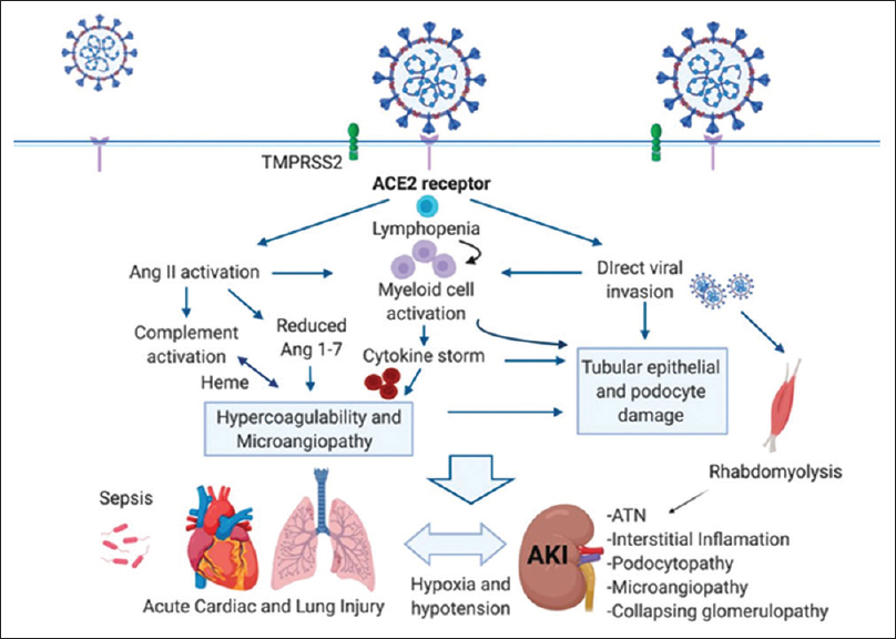 Figure 4: Systemic inflammations and multiorgan injury during severe acute respiratory syndrome coronavirus